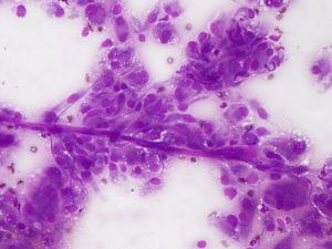 citologia - perivascolare